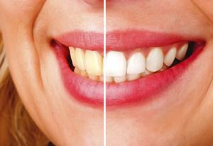 Preco De Clareamento Dental Em Pinheiros Sp Acr Odontologia